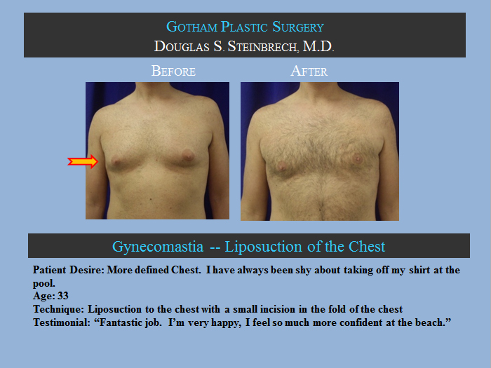 Los angeles male breast reduction