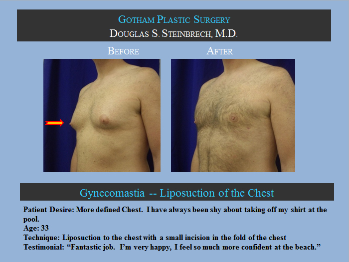 Gynecomastia Surgery Los Angeles Male Breast Reduction