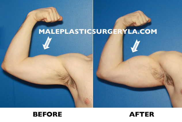 biceps-implants-before-after-Los-Angeles
