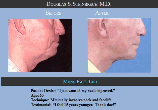 face-lift-Before-After-photo-Los-Angeles-CA