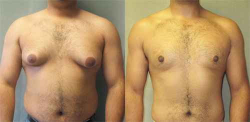 gynecomastia-summer-los-angeles