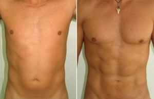 male-liposuction-summer-los-angeles