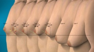 types-of-gynecomastia-300x169