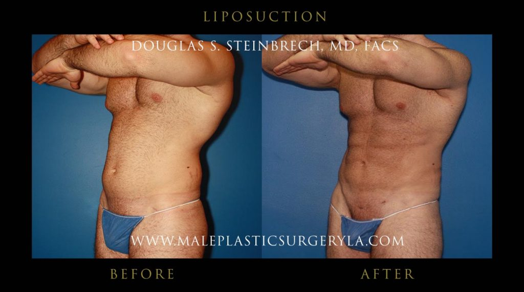 liposuction-Los-Angeles-before-after-photos-front-left-up