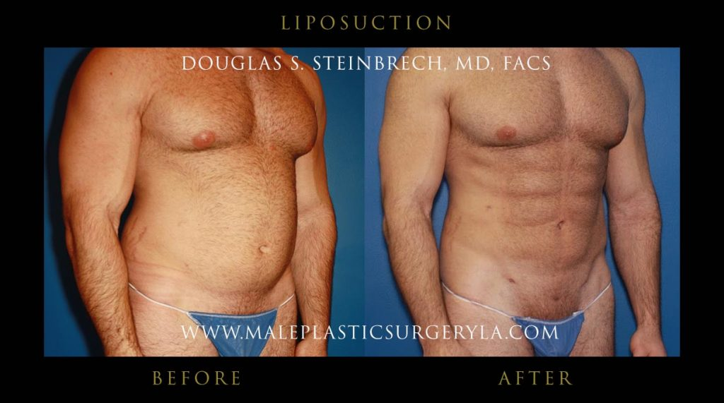 liposuction-Los-Angeles-before-after-photos-front-right-down