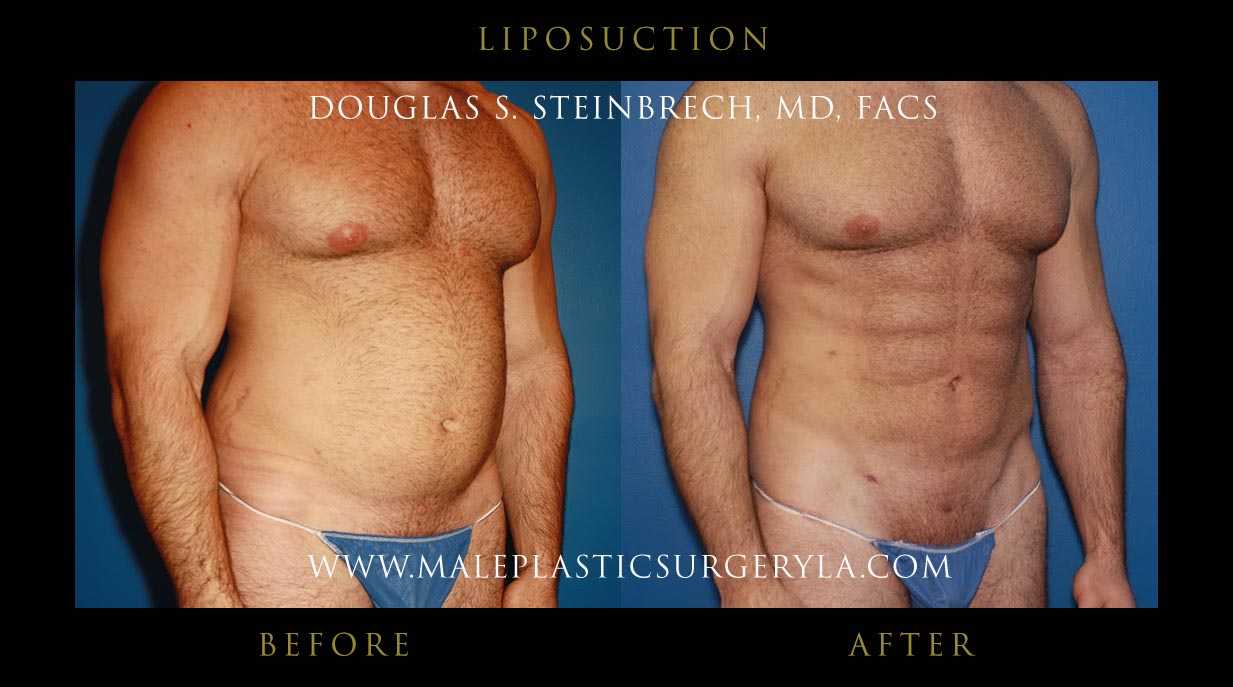 Sex after tummy tuck