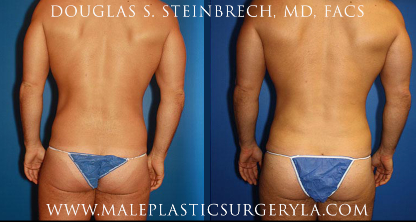 Latissimus-Dorsi-Lat-implants-Los-Angeles-CA before after