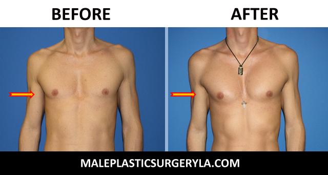 pectoral-implants-Los-Angeles