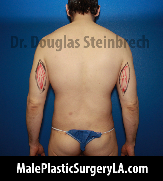 tricep-implants-in-Los-Angeles-marks