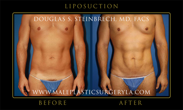 biggest-winner-male-plastic-surgery-LA-02