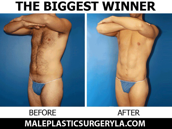 biggest-winner-male-plastic-surgery-before-after-01