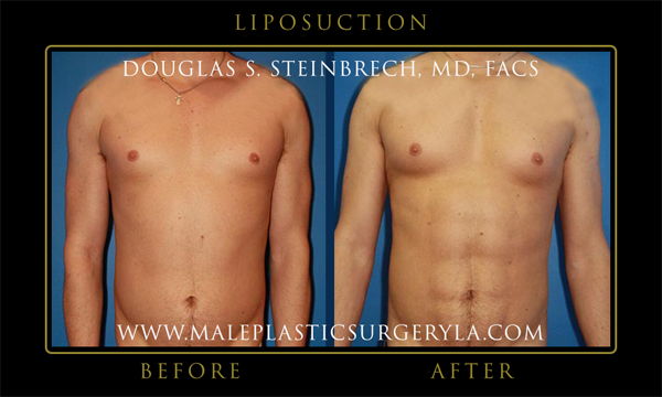 biggest-winner-male-plastic-surgery-before-after-03