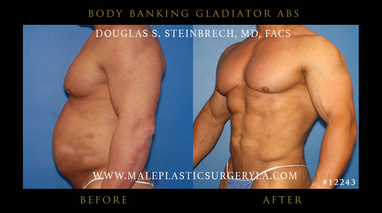 Ftm pectoral implants
