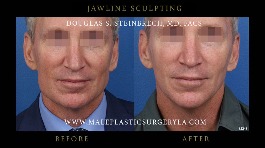 jawline-sculpting-before-after-photos-la-01