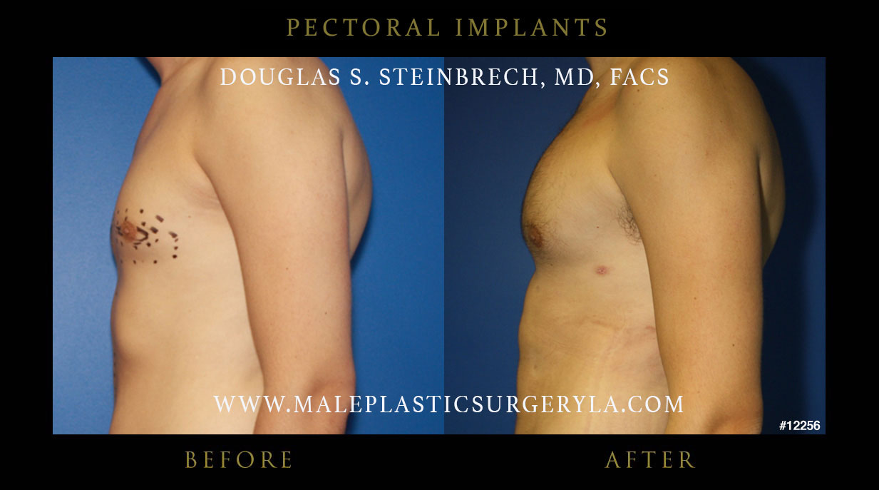 Pectoral Implants Before Amp After Photos Los Angeles