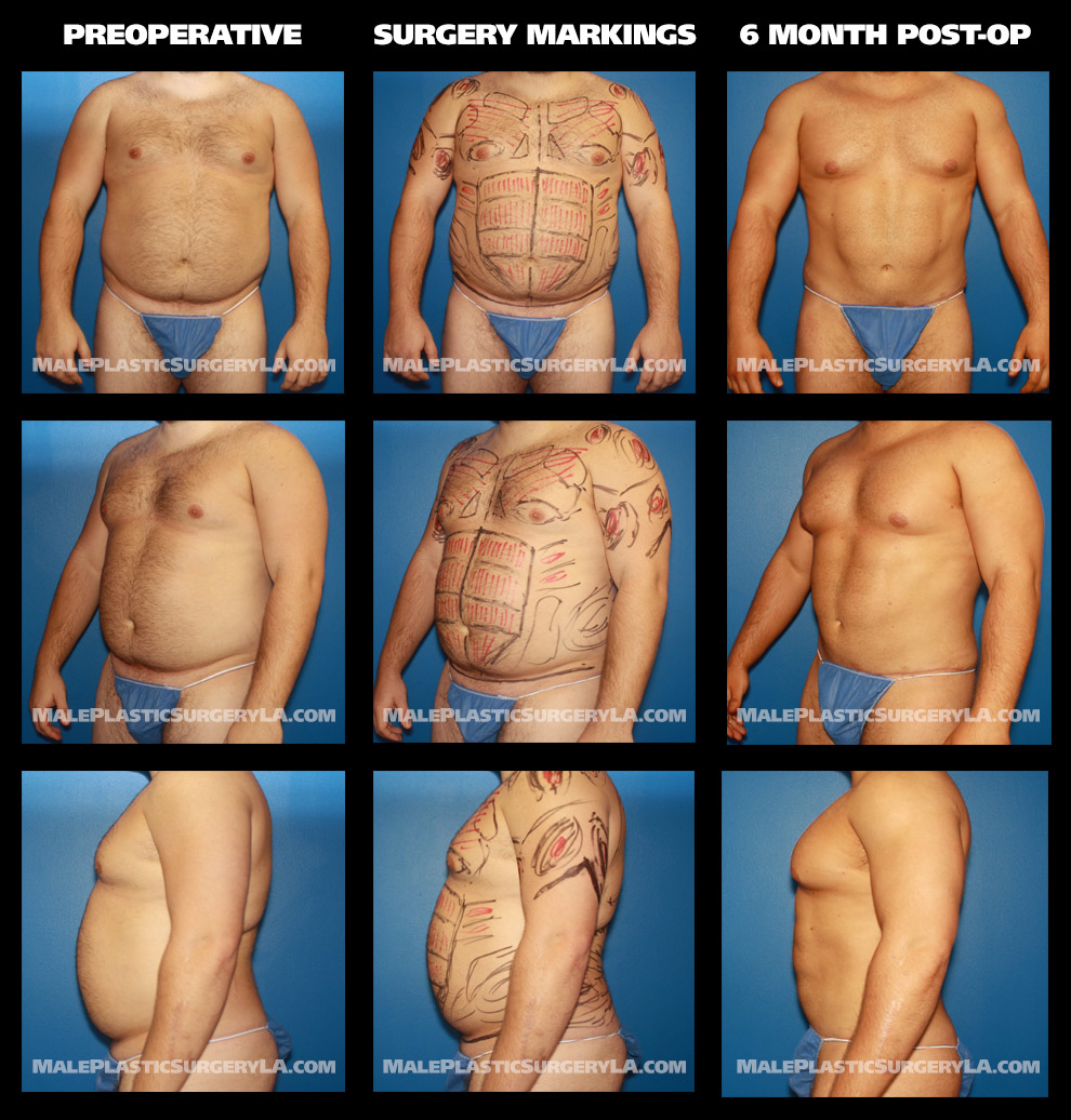 Male Plastic Surgery: Which Package Fits You? - Male Plastic
