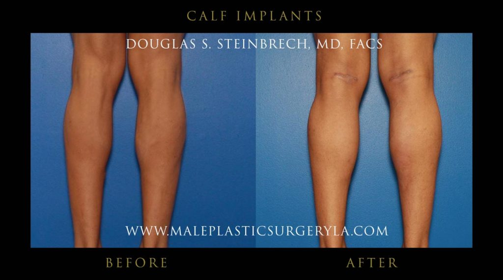 calf-implant-patient-Los-Angeles-before-after-back