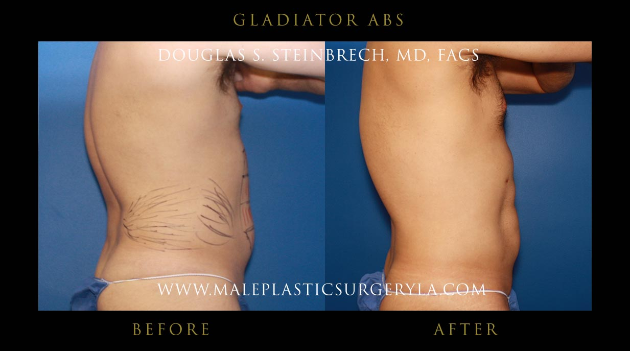 gladiator abs before and after photos in los angeles