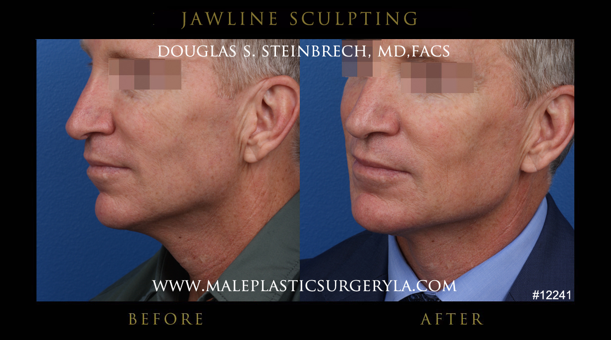Chiseled jawline sculpting gallery before & after photos LA