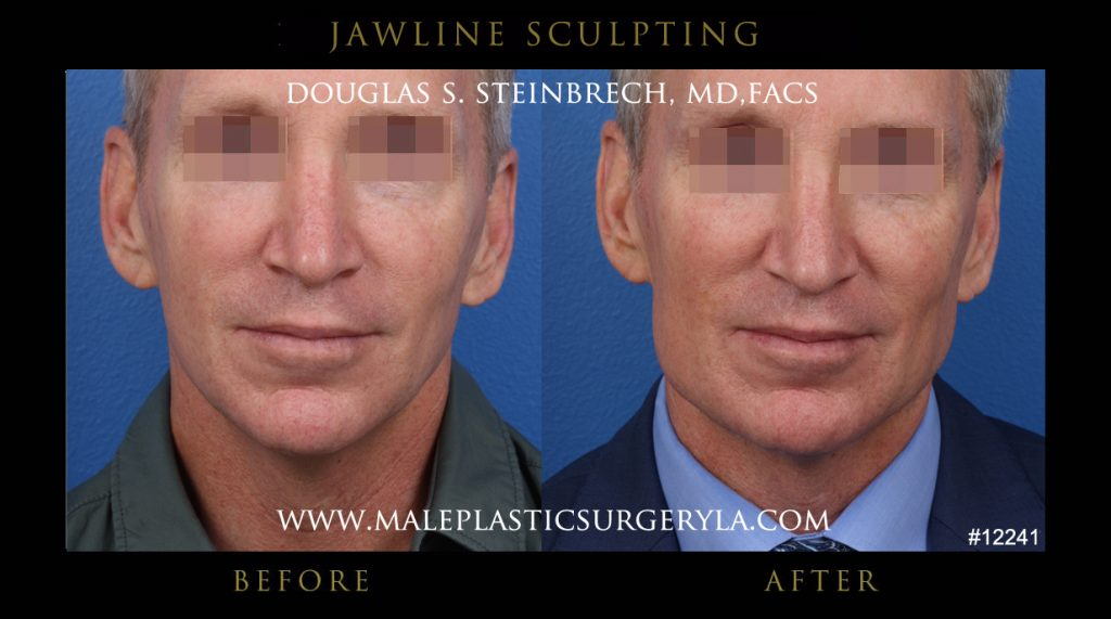 jawline-sculpting-mps-la