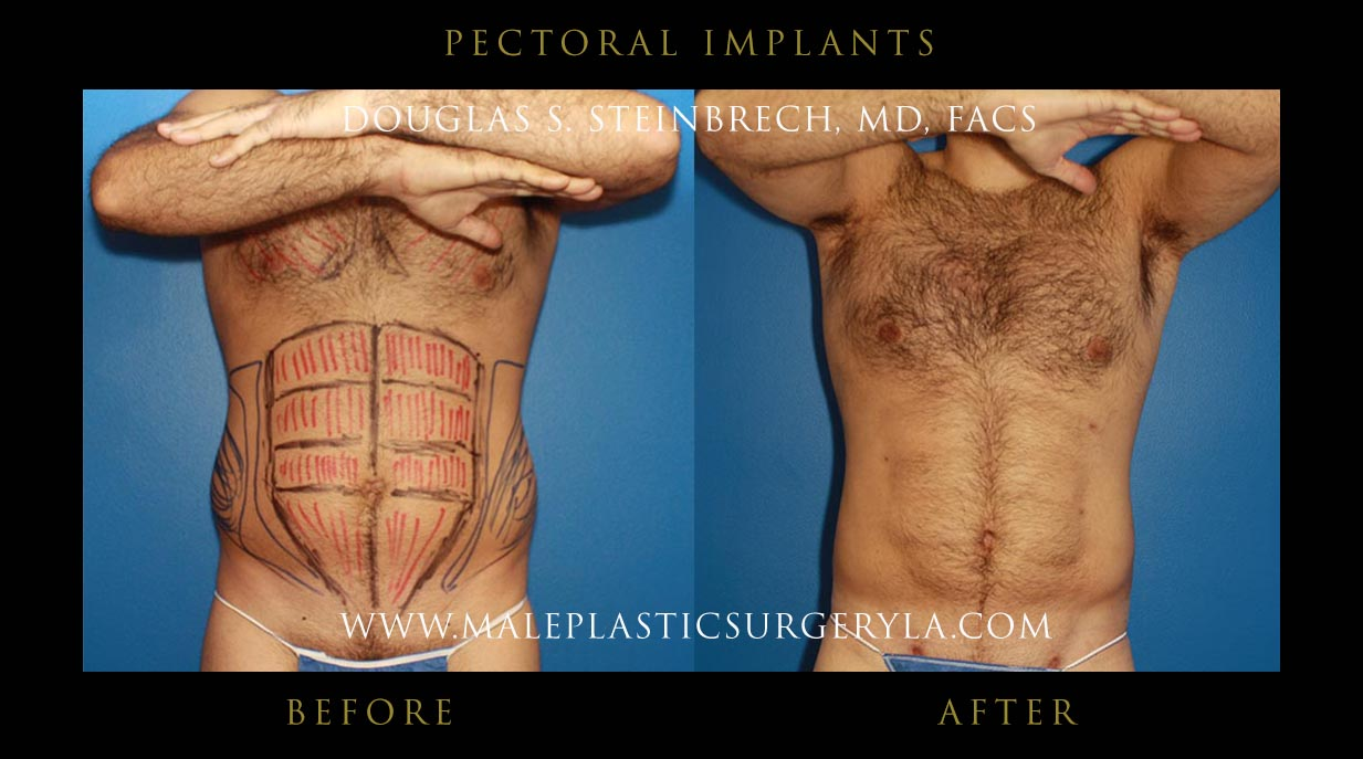 Before and after photos of Patients with Penile