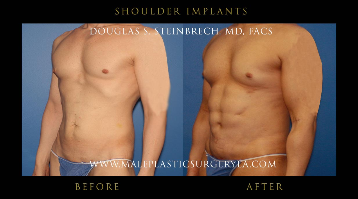 Fat Removal Surgery Cost >> Shoulder implants before and after photos in Los Angeles, CA