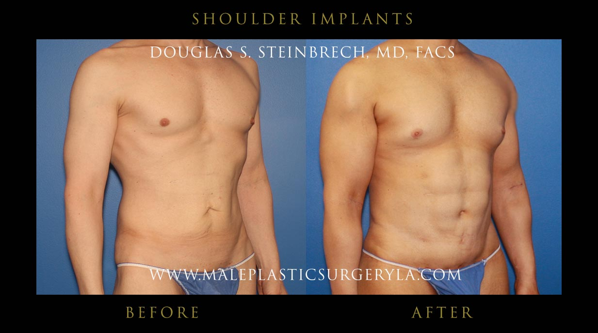 shoulder-implants-patient-1001-front-right