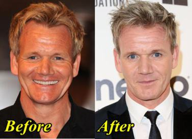Gordon Ramsey Transforms His Face