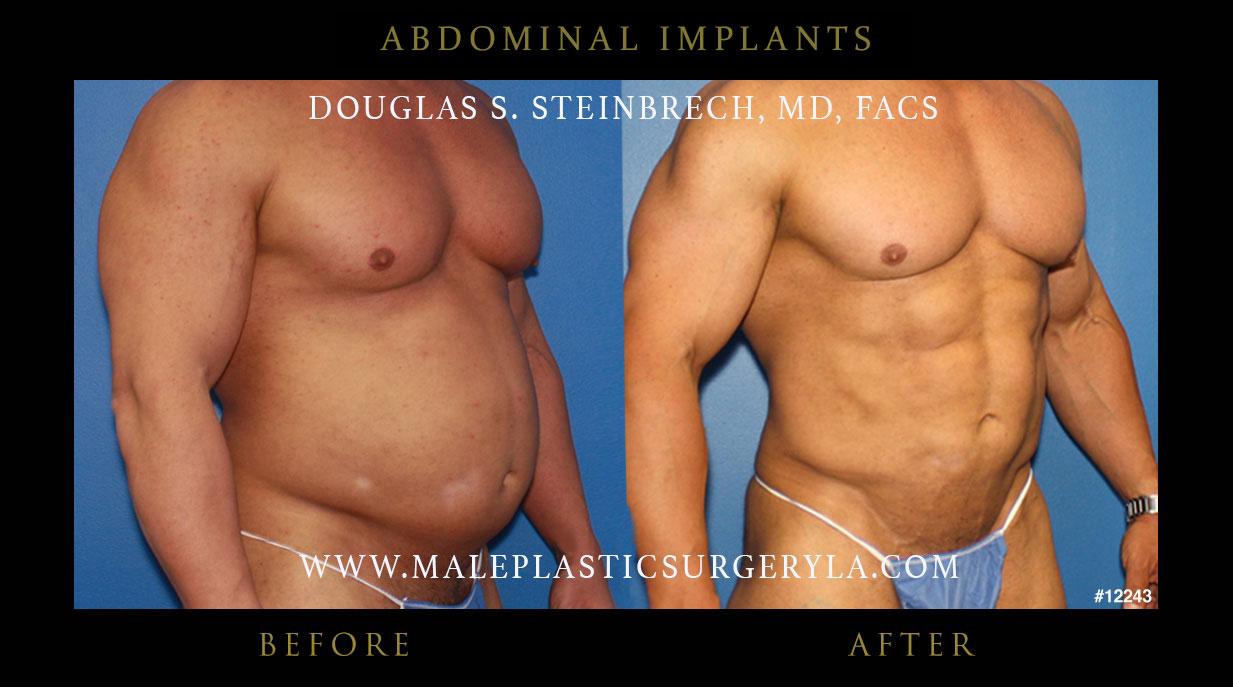 Six Pack Implants | 6-Pack Implants | Abdominal ...