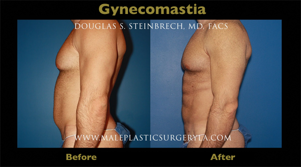 Gynecomastia Surgery Cost In Los Angeles Gynecomastia Treatment