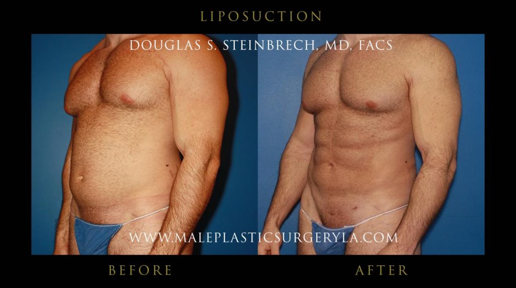 insurance-liposuction-Los-Angeles-CA