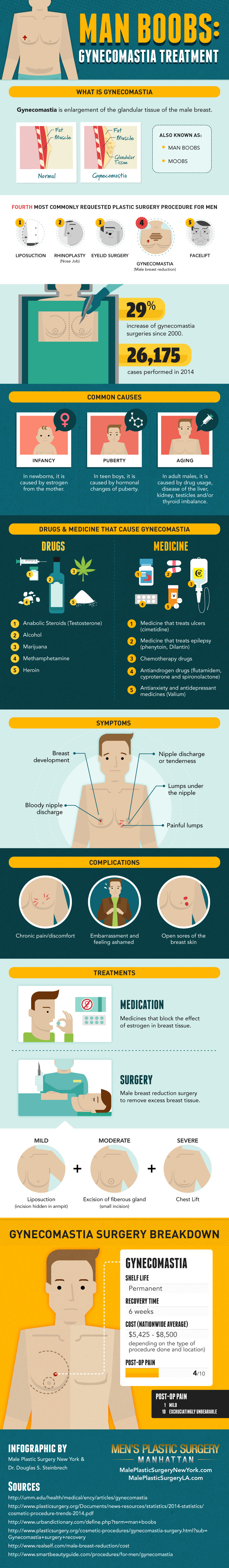 gynecomastia-man-boobs-infographic-LA