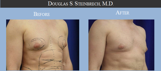 male-breast-reduction-Beverly-Hills-CA