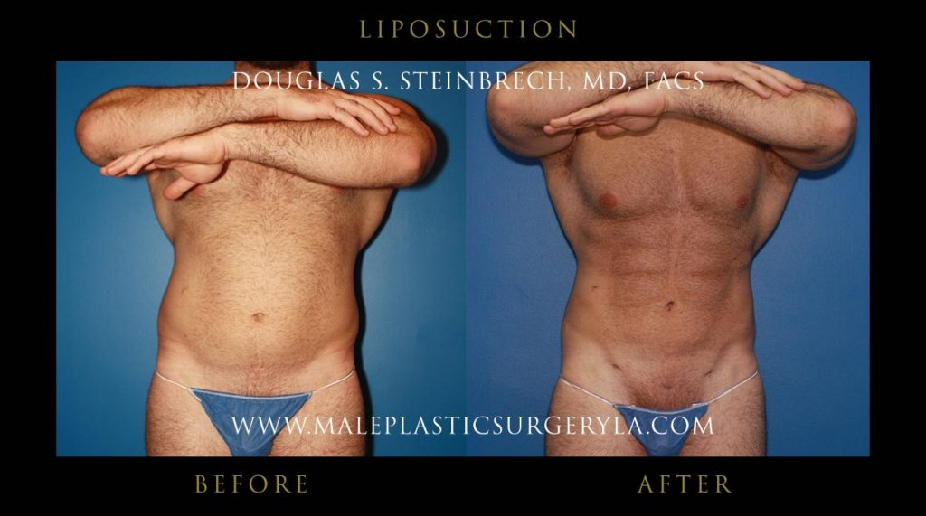 average-cost-male-liposuction-Los-Angeles