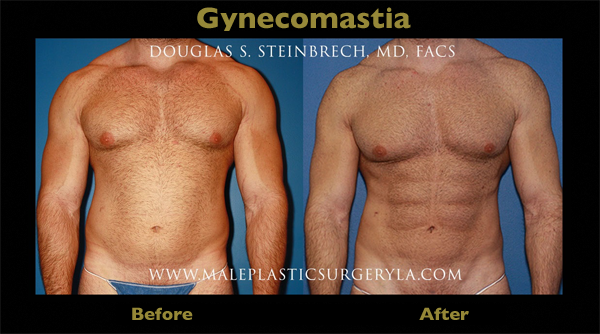 gynecomastia-Los-Angeles-surgery-before-after-04