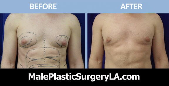health-insurance-cover-gynecomastia-in-LA